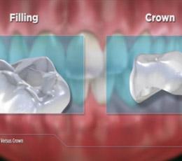 Video-crown.jpg
