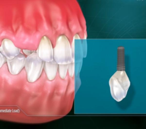 implant-leftside.png